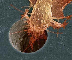 Как предотвратить рак - советы онколога
