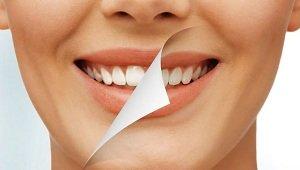 Отбеливание зубов - эффективные способы