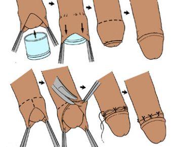 Зачем делают обрезание мужчинам и какие преимущества оно дает?