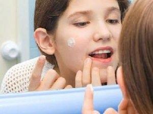 Прыщи на лице - как избавиться и причины появления