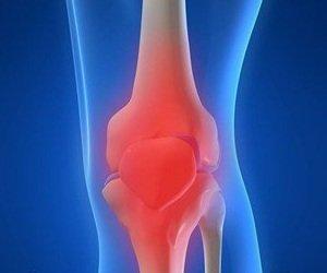 Деформирующем остеоартрозе »  Ревматоидный артрит