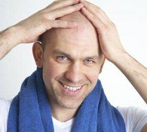 Лысина - проблема на голове или в голове