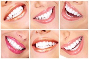 В домашних условиях отбелить зубы без вреда