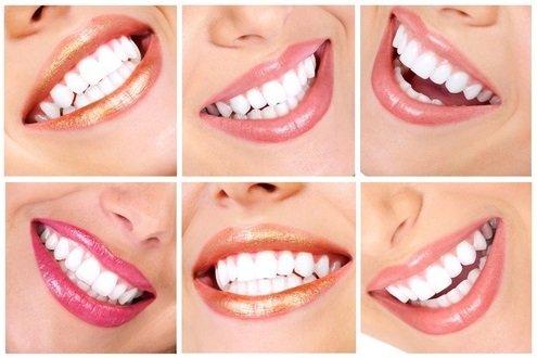 Вопросы стоматологу бесплатно и ответы на них.