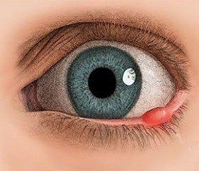 Ячмень на глазу лечить