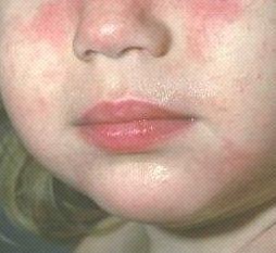 Как лечить атопический дерматит