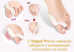 Косточки на ногах лечение