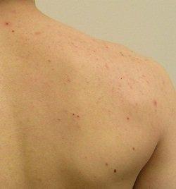 Прыщи на спине у подростка – причины и лечение