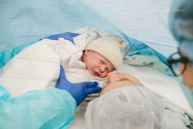 Кесарево сечение глазами детского врача.
