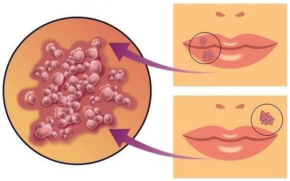 Вирус герпеса на губах и лице