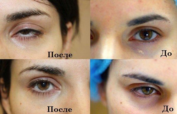 Перманентный макияж от кругов под глазами