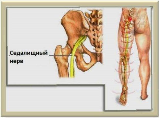 Воспаление седалищного нерва — причины и лечение