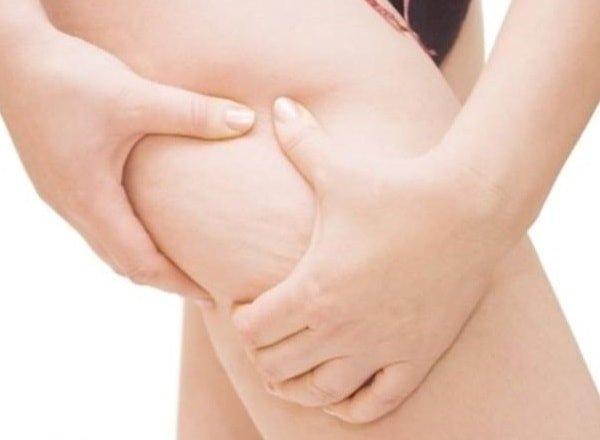 Как убрать растяжки после похудения