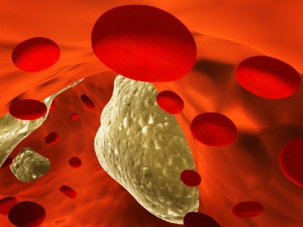 Шлаки в организме человека нужно превратить в соли