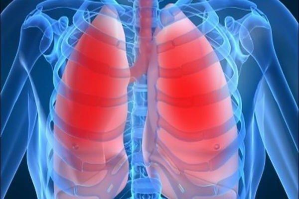 Пневмония – лечение народными средствами