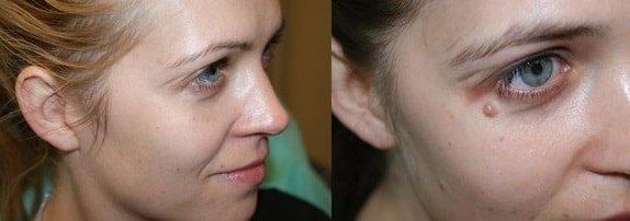 Домашние методы лечения бородавок и папиллом