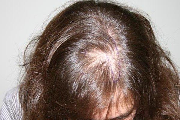 Облысение – советы дерматолога по решению проблемы