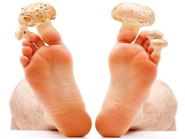 Как вылечить грибок ногтей и кожи на ногах и руках