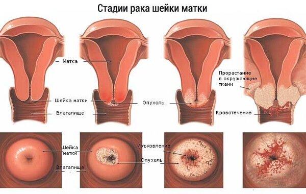 Стадии онкологии