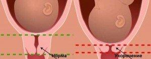 Укорачивается шейка матки при беременности