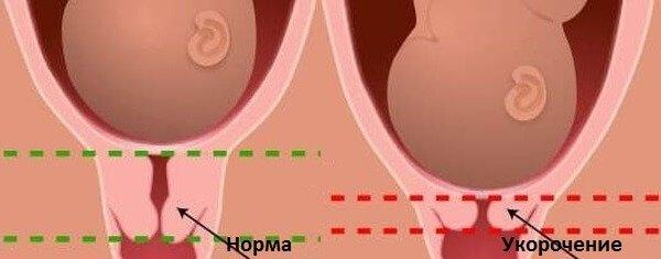 Норма и укорочение