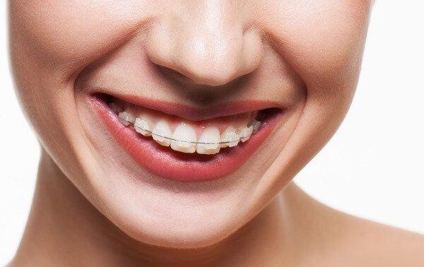 Сапфировые брекеты для исправления зубов на верхней челюсти.