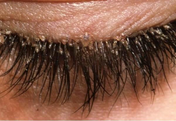 клещи в ресницах – симптомы, лечение, фото и видео