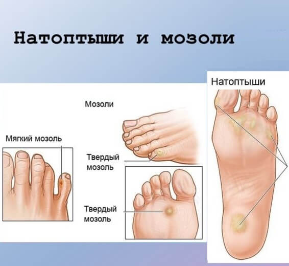 Сухие мозоли на ногах и натоптыши