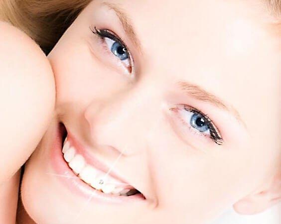 Скайсы на зубы для ослепительной улыбки