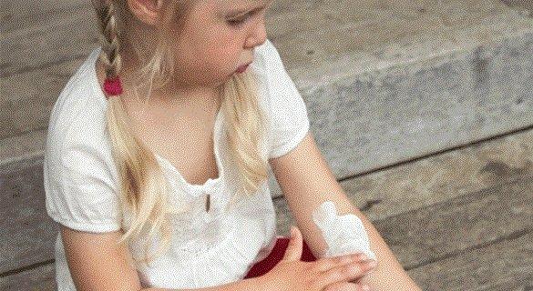 Лечение экземы у детей.