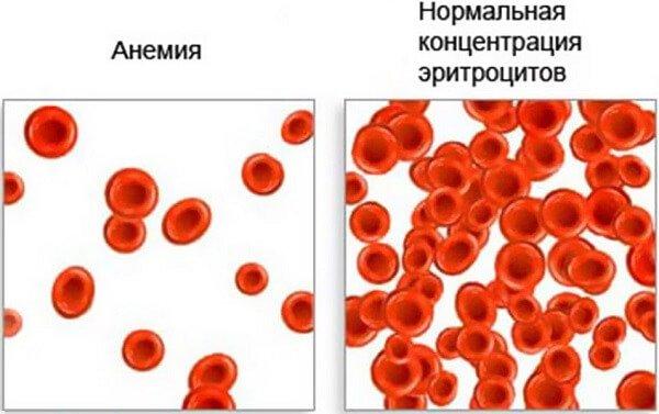 Красные кровяные тельца.