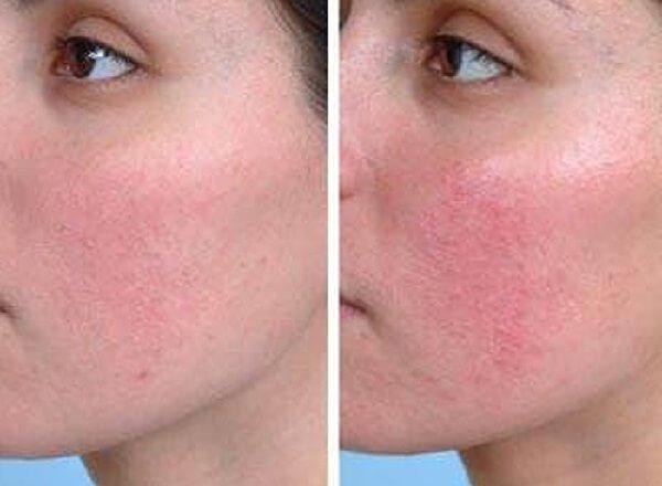 Покраснения на лице у женщин вызывает розацеа и аллергия.