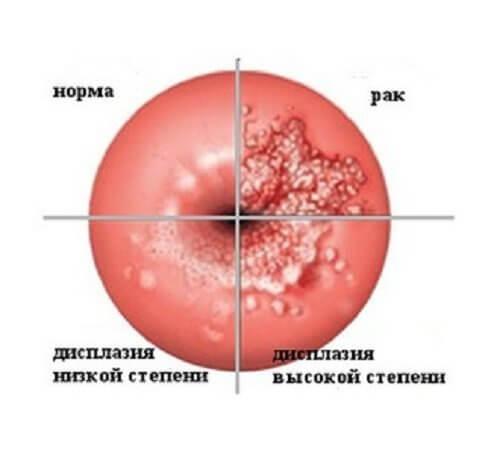 Симптомы дисплазии шейки матки.