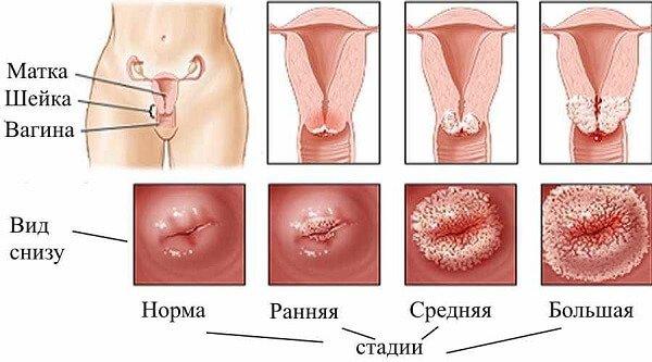 Хронический цервикоз шейки матки перерастает в рак!