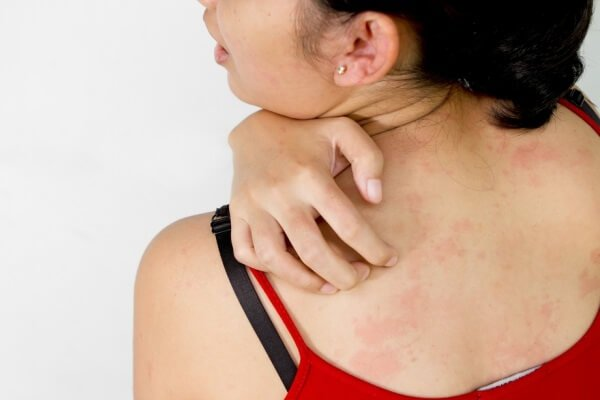 Почесуха болезнь пруриго – симптомы и лечение.