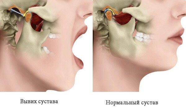 Вывех сустава нижней челюсти какой врач заболевание суставов
