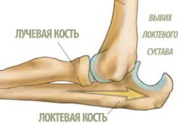 Самые распространенные вывихи суставов - локоть.
