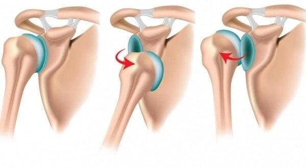 Самые распространенные вывихи суставов - плечо.