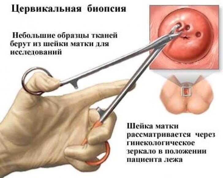 Как убираются папилломы на шейки матки