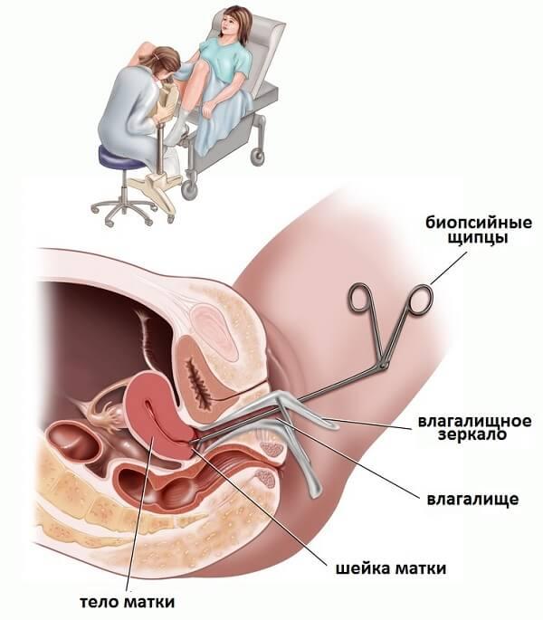 Биопсия шейки матки и проведение процедуры.