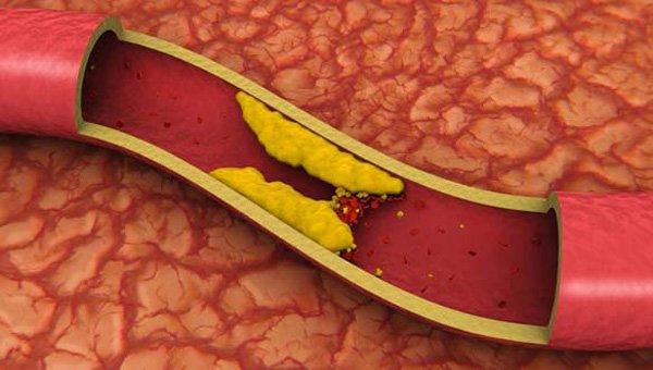 Холестерин закупоривает сосуды.